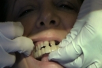 Atlanta Cosmetic Dentist Snap-On-Smile Video