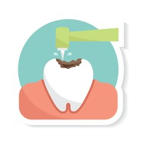 Drilling on a tooth to place a filling while performing children's dentistry in Lilburn, GA