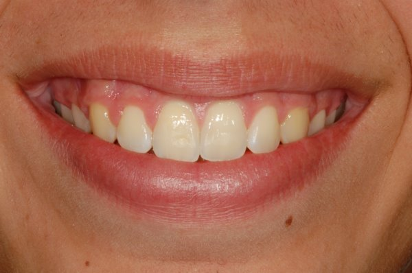 Overbite Correction With A Simple Retainer And Braces