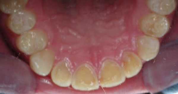 Tooth Erosion Dental Crowns Snellville Cosmetic Dentist