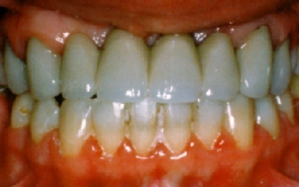 Dental Bridge Lilburn Ga Killian Hill Dental Care