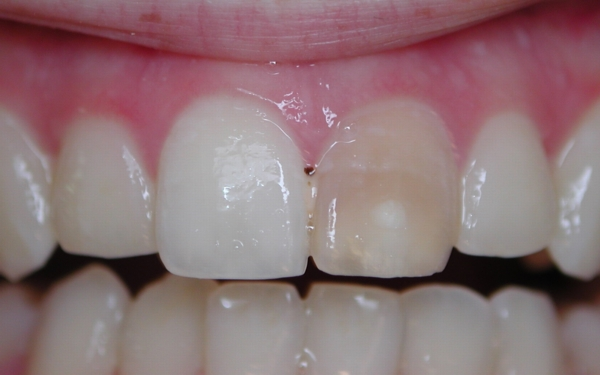 Tooth Whitening Inside The Tooth Lilburn Cosmetic