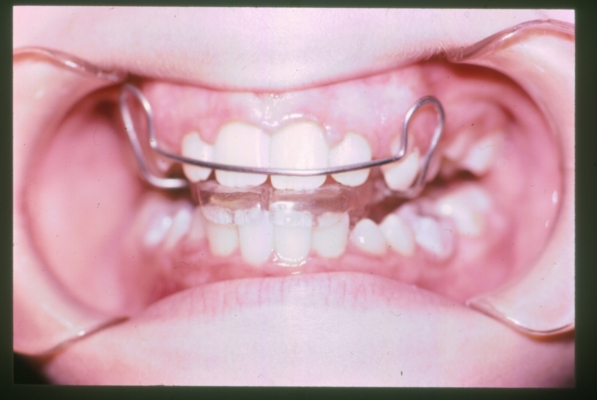 Overbite Correction With A Simple Retainer Lilburn Ga