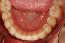 Invisible Braces After Lower